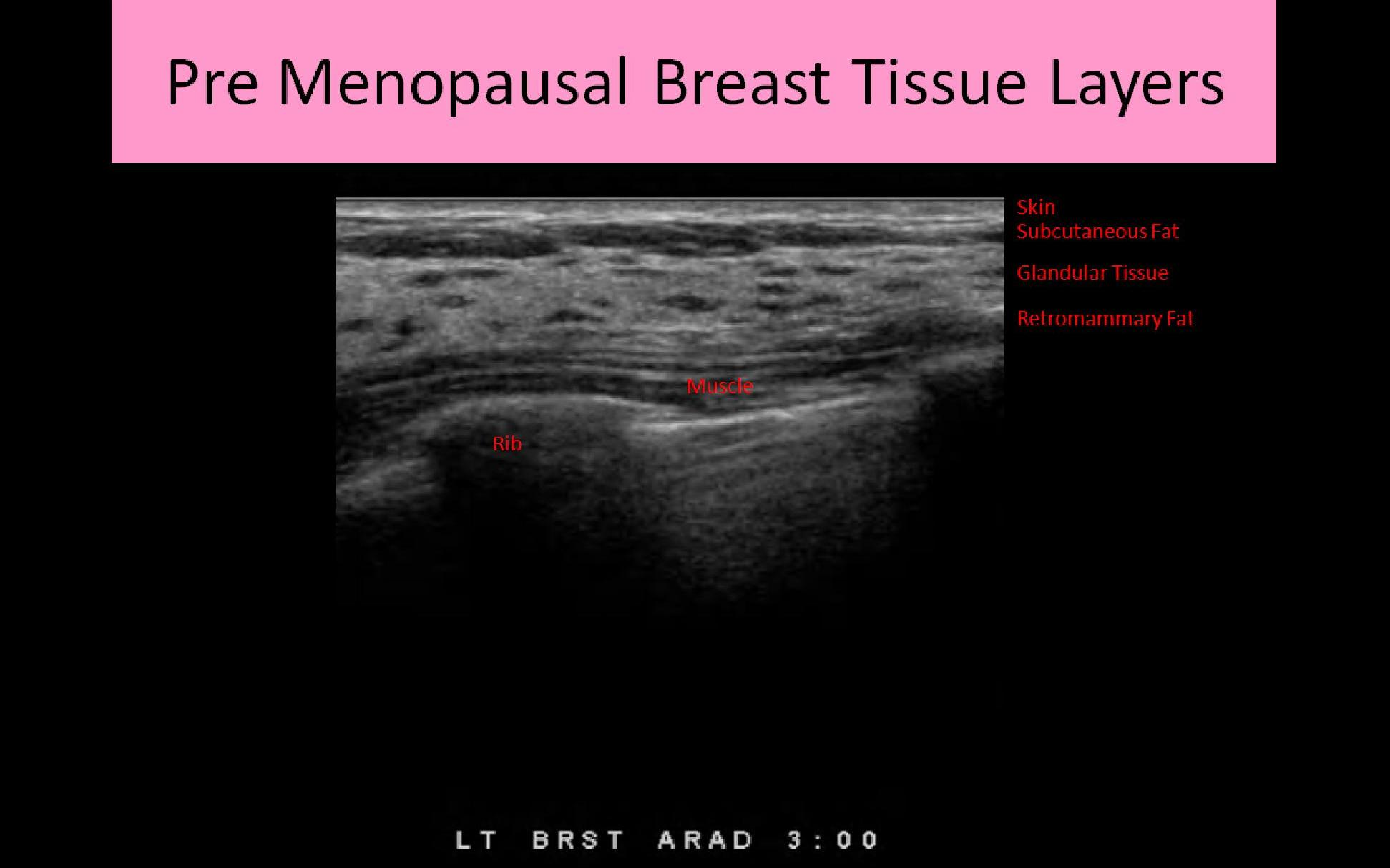 BREAST ANATOMY AND PHYSIOLOGY - Ultrasound Registry Review