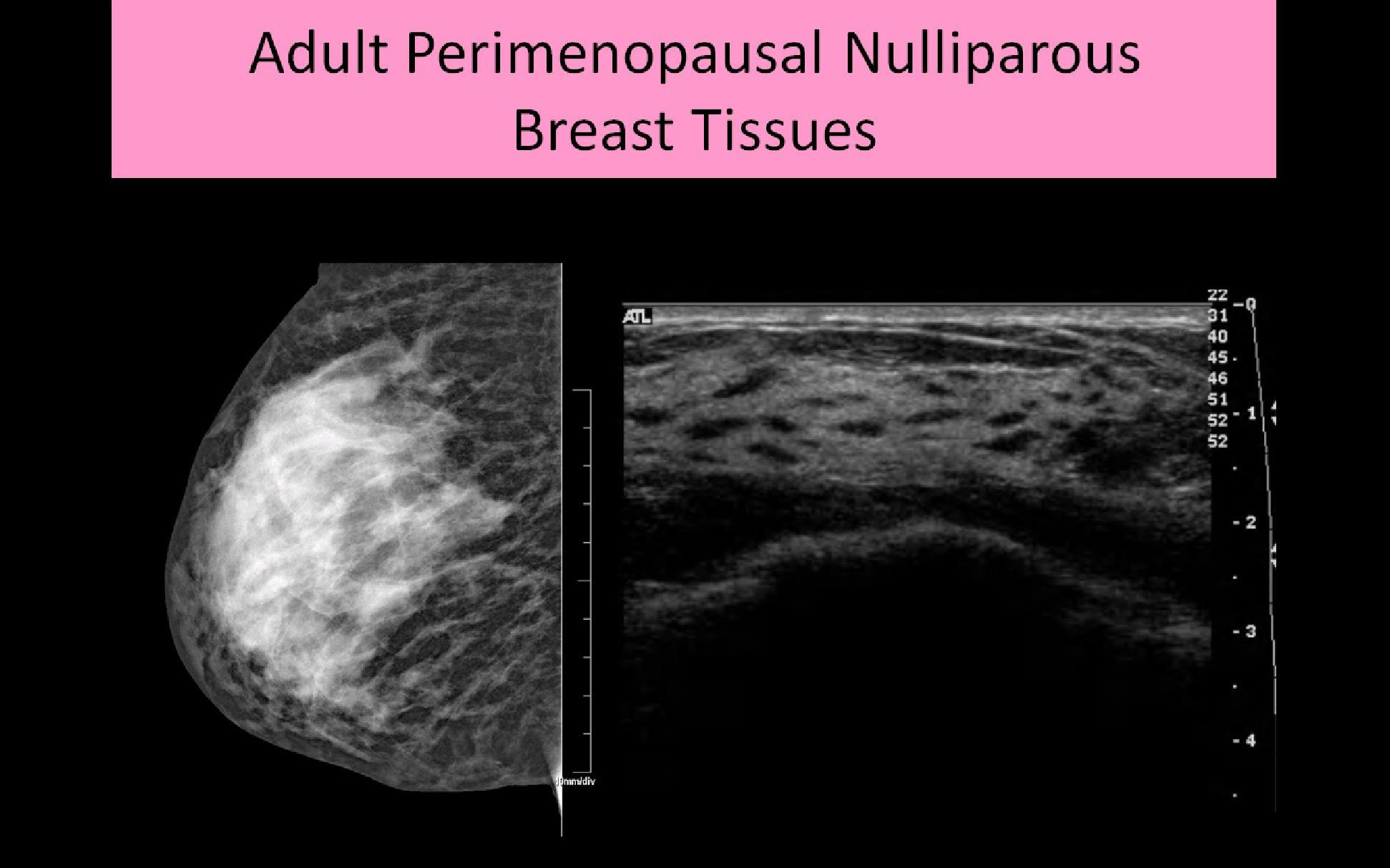 how to tell abnormal normal breat lump