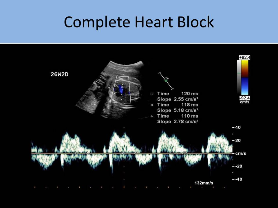 fetal echocardiography registry review