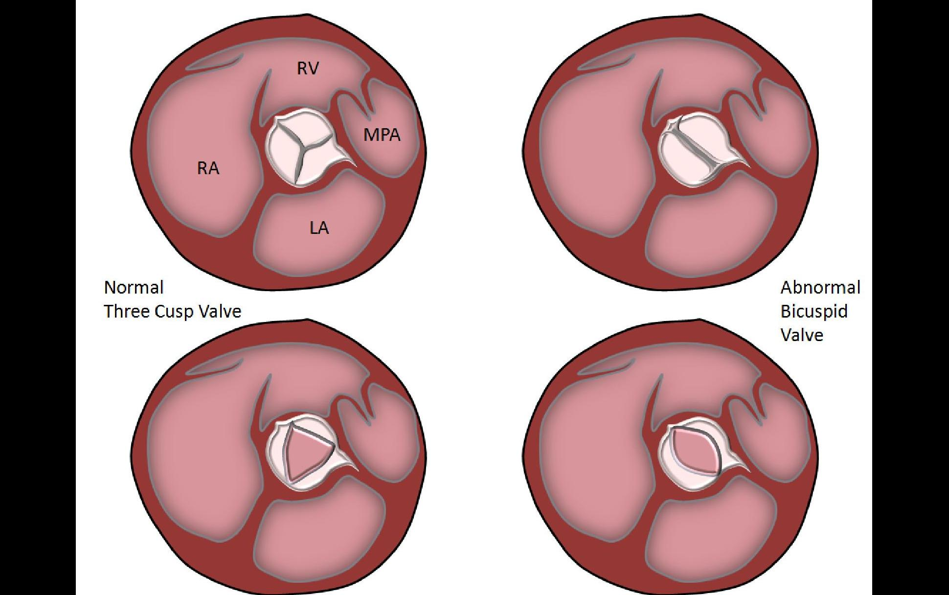 Fused Aortic Valve Leaflets - Collection Of Wiring Diagram •