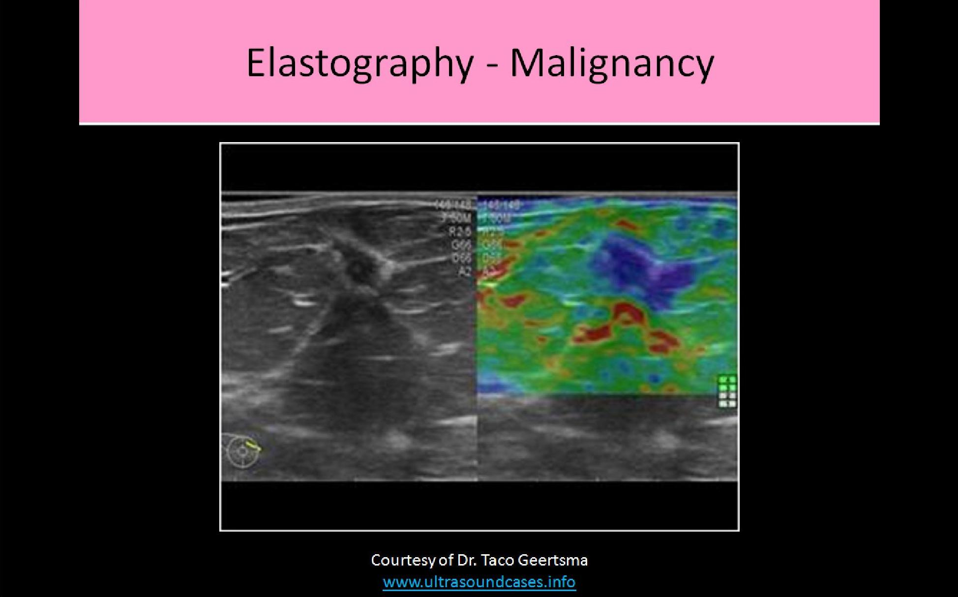 Breast Ultrasound: Breast Ultrasound Registry Review Questions